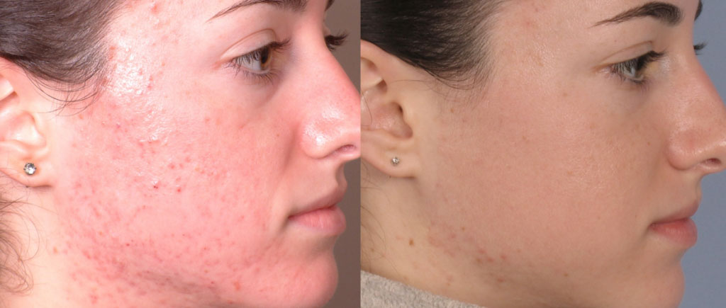 before-after-acne-two